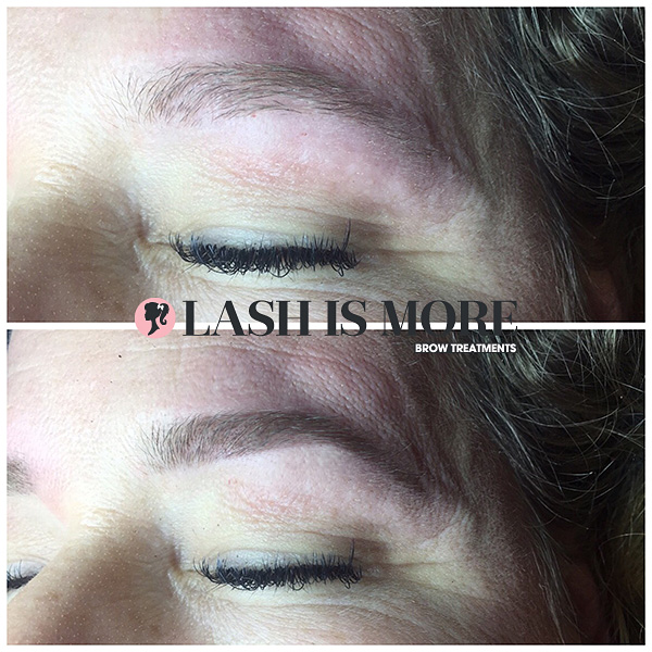 brow treatment 3